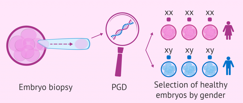 process-of-pgd-for-gender-selection