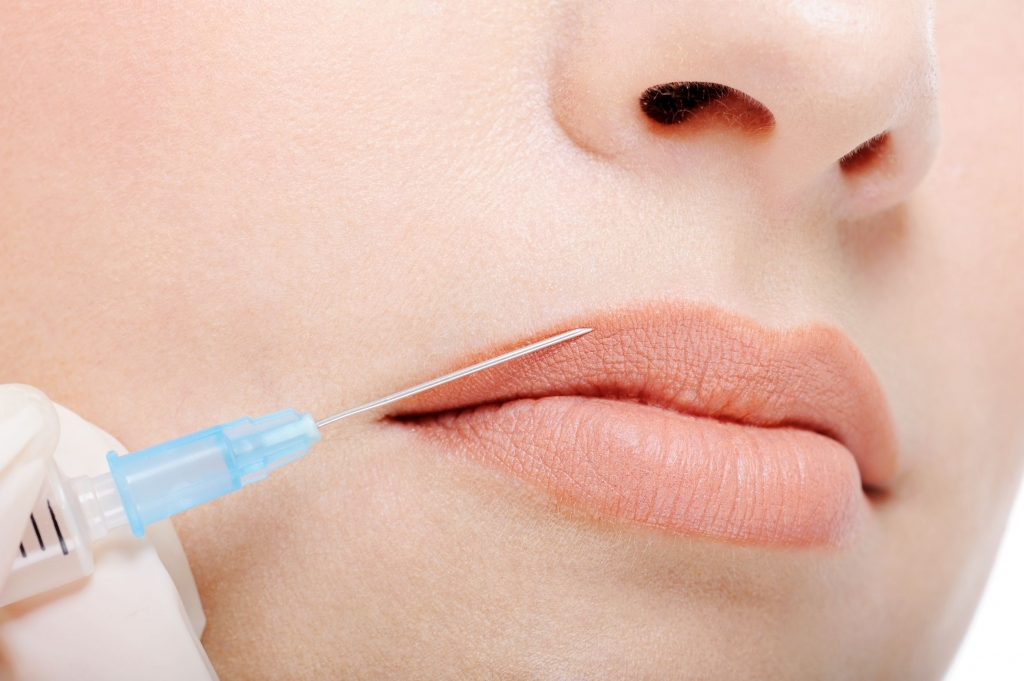 Cosmetic injection in the female lips - fragment of face close-up